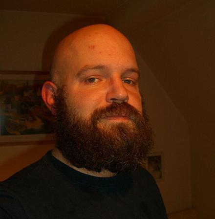 Forskningen går framåt på flera områden. Nu senast om skalliga män.